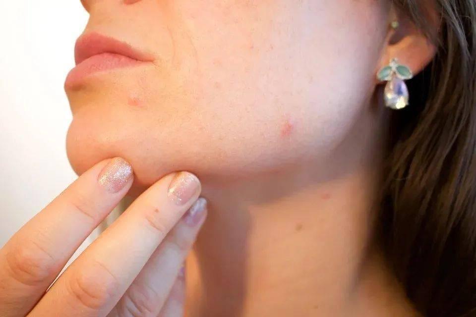 吃福牌阿胶养血祛斑、滋润皮肤插图(1)