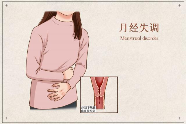 摄图网_401804068_月经失调医疗插画(企业商用).jpg