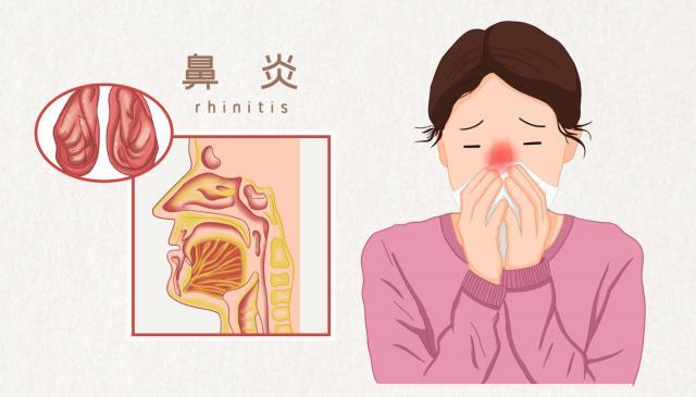 摄图网_401809158_鼻炎医疗插图(企业商用).jpg